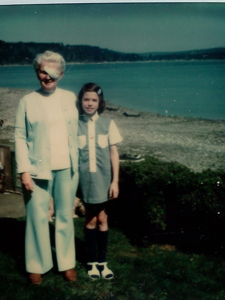 Adult woman with white hair and a bandage over her eye standing next to a young girl in front of a beach